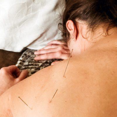 Dry needling behandling på skuldra